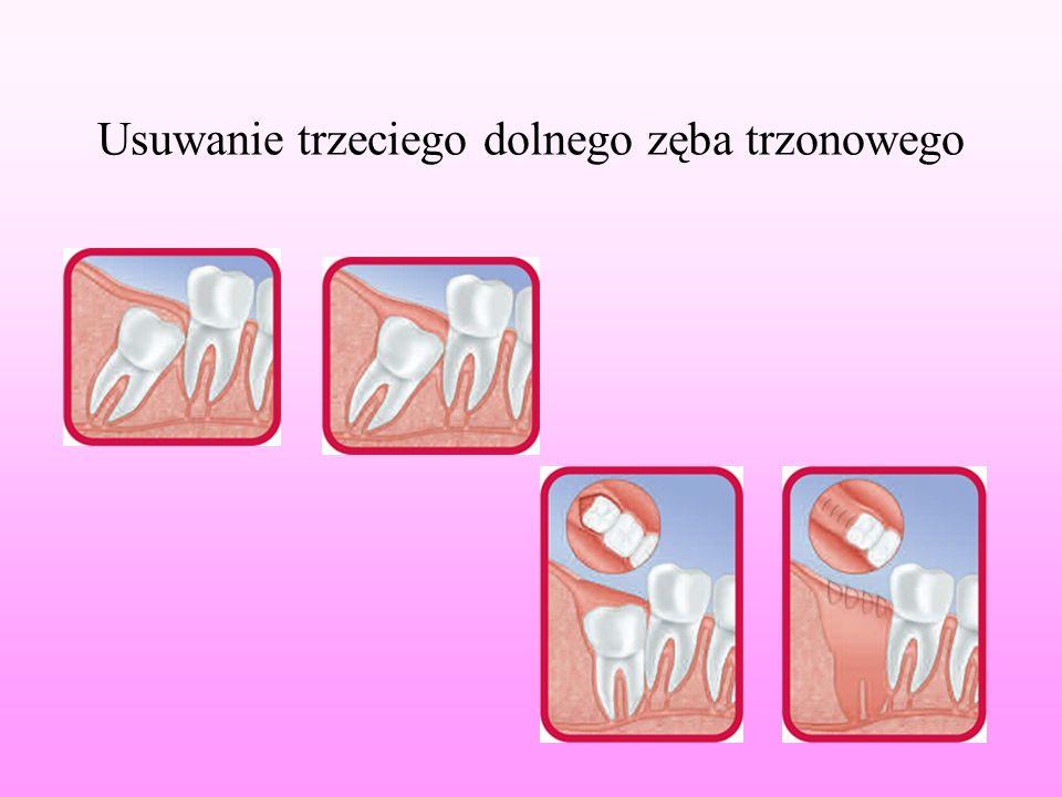 Usuwanie trzeciego dolnego zęba trzonowego