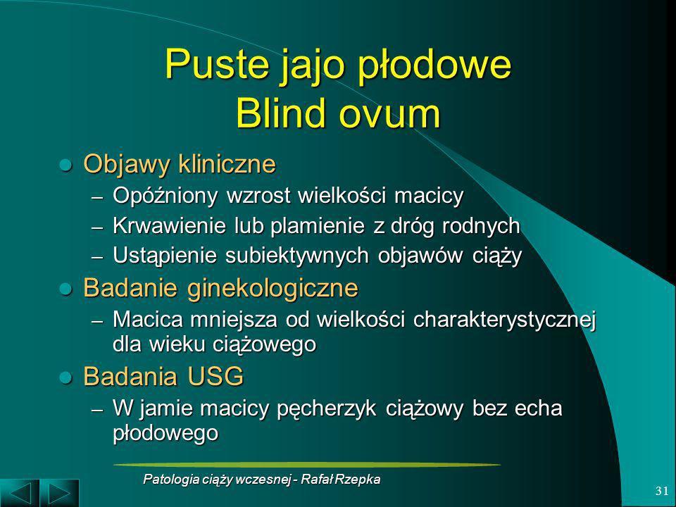 Patologia ciąży wczesnej - Rafał Rzepka 31 Puste jajo płodowe Blind ovum Objawy kliniczne Objawy kliniczne – Opóźniony wzrost wielkości macicy – Krwaw