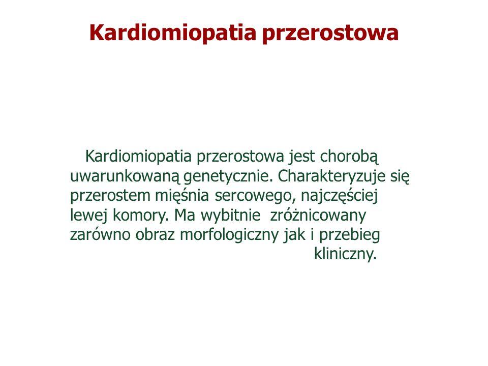 Kardiomiopatia przerostowa Kardiomiopatia przerostowa jest chorobą uwarunkowaną genetycznie. Charakteryzuje się przerostem mięśnia sercowego, najczęśc