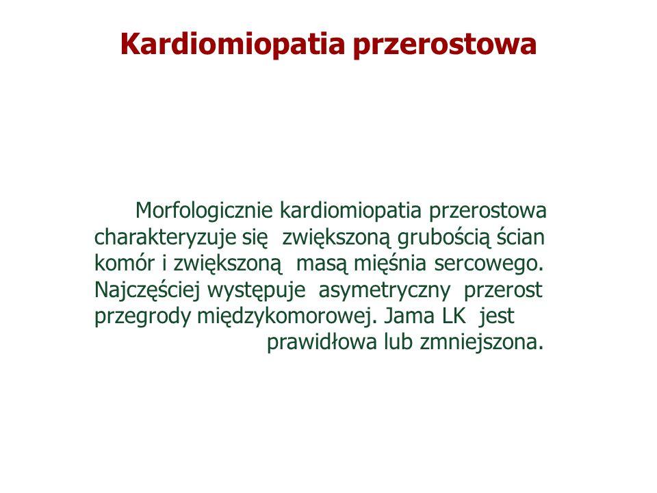 Kardiomiopatia przerostowa Morfologicznie kardiomiopatia przerostowa charakteryzuje się zwiększoną grubością ścian komór i zwiększoną masą mięśnia ser