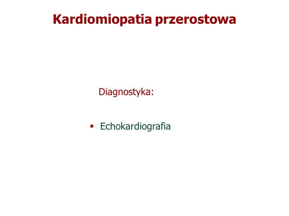 Kardiomiopatia przerostowa Diagnostyka: Echokardiografia Diagnostyka: Echokardiografia