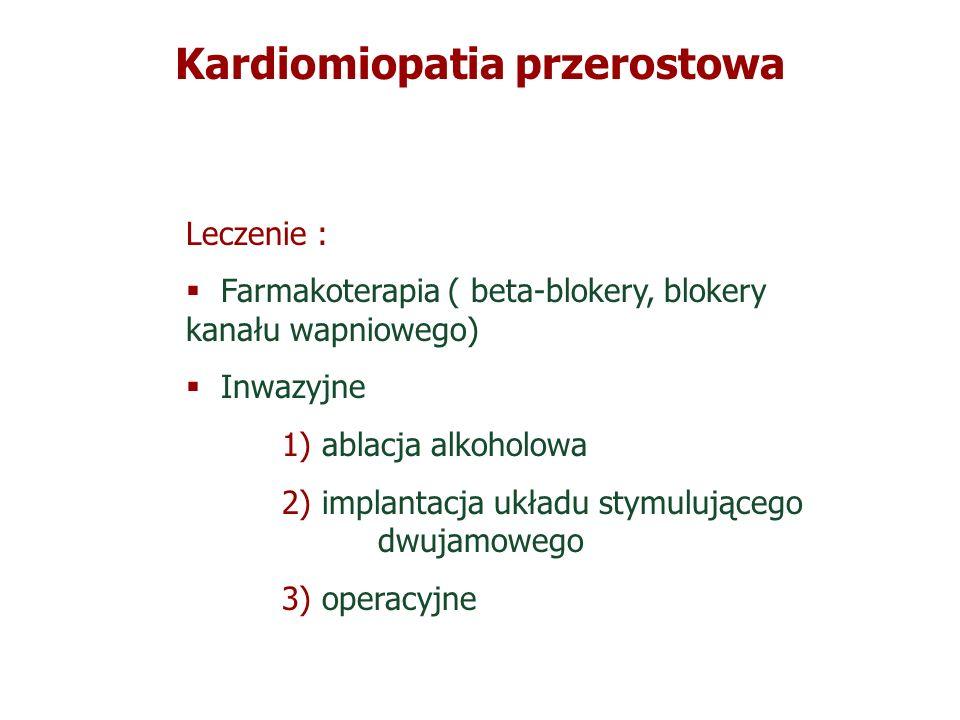 Kardiomiopatia przerostowa Leczenie : Farmakoterapia ( beta-blokery, blokery kanału wapniowego) Inwazyjne 1) ablacja alkoholowa 2) implantacja układu