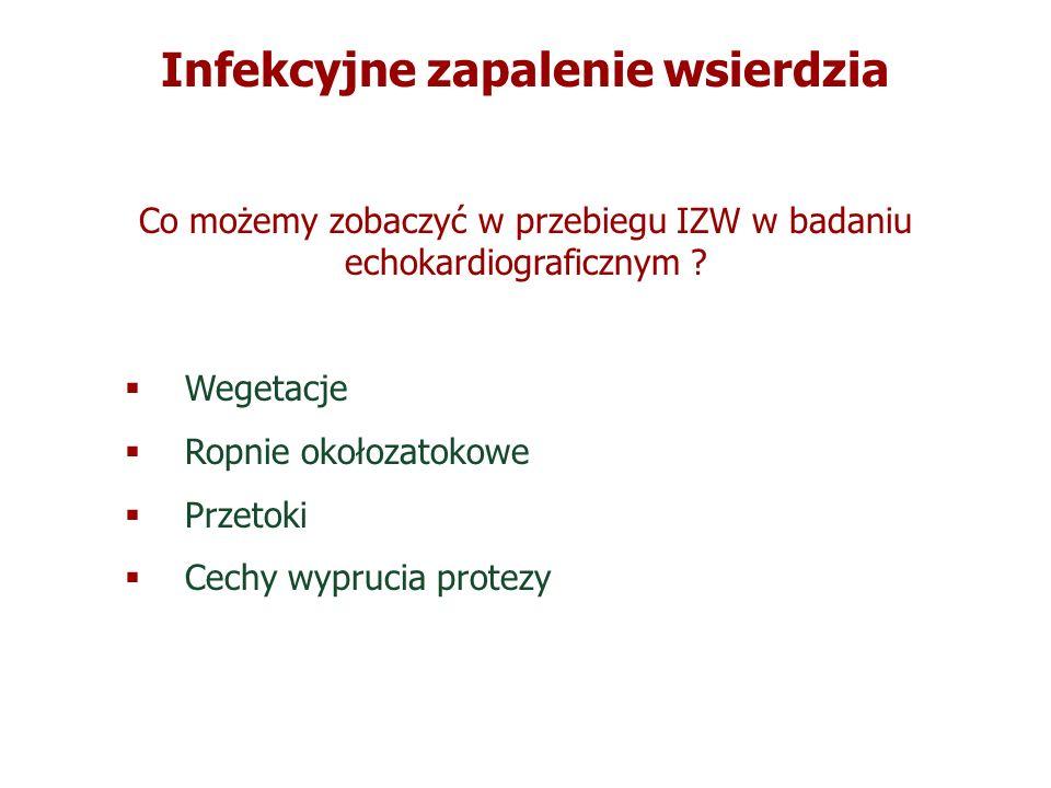 Infekcyjne zapalenie wsierdzia Co możemy zobaczyć w przebiegu IZW w badaniu echokardiograficznym ? Wegetacje Ropnie okołozatokowe Przetoki Cechy wypru