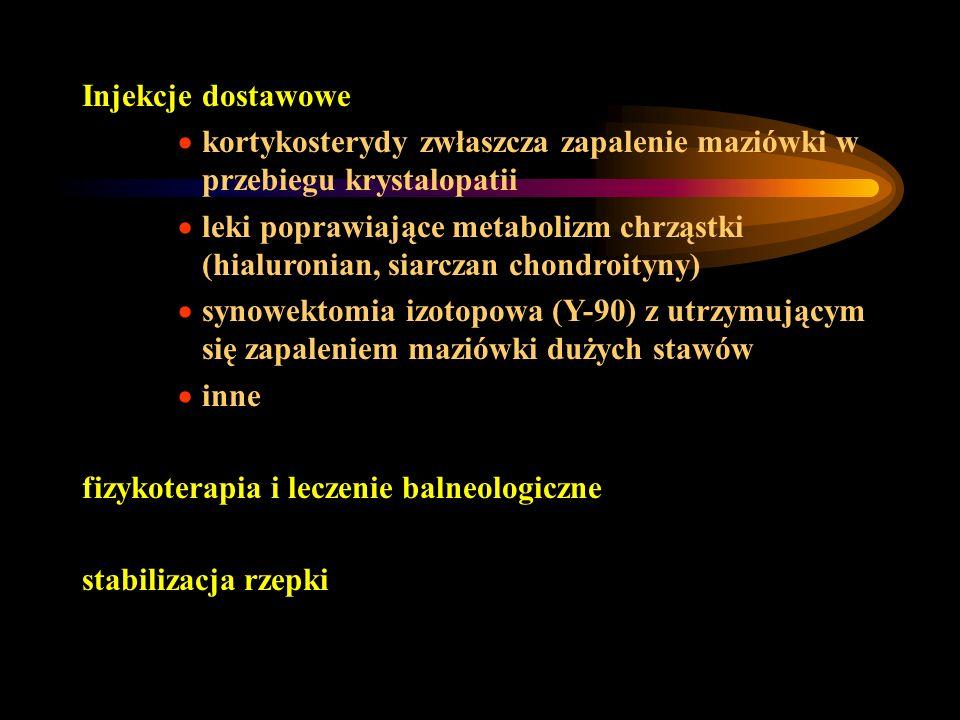 Injekcje dostawowe kortykosterydy zwłaszcza zapalenie maziówki w przebiegu krystalopatii leki poprawiające metabolizm chrząstki (hialuronian, siarczan