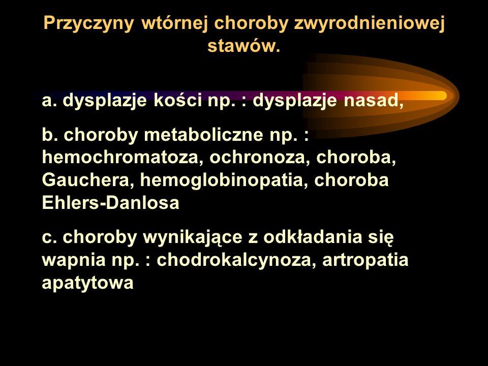 a. dysplazje kości np. : dysplazje nasad, b. choroby metaboliczne np. : hemochromatoza, ochronoza, choroba, Gauchera, hemoglobinopatia, choroba Ehlers