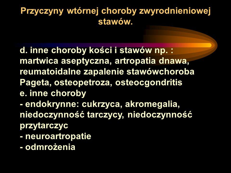 d. inne choroby kości i stawów np. : martwica aseptyczna, artropatia dnawa, reumatoidalne zapalenie stawówchoroba Pageta, osteopetroza, osteocgondriti