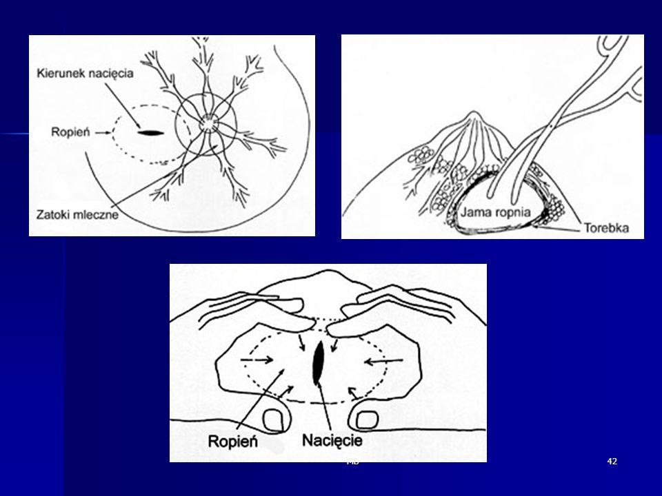 MB43 Choroba zakrzepowa w połogu : Czynniki ryzyka : - ciążą (zmiany w zakresie czynników hemostatycznych) * hydremia ciążowa oraz zagęszczenie w połogu, * fibrynogeny,PLT, aktywności VII,VIII,X, von Willebranda, * wolnego białka S ( kofaktor bialka C Va i VIIIa) * obniżona aktywność fizyczna, zmniejszony powrót żylny z miednicy, - zakażenia połogowe - żylaki kończyn dolnych i miednicy mniejszej, - połóg po cieciu cesarskim, - cukrzyca, gestoza EPH,