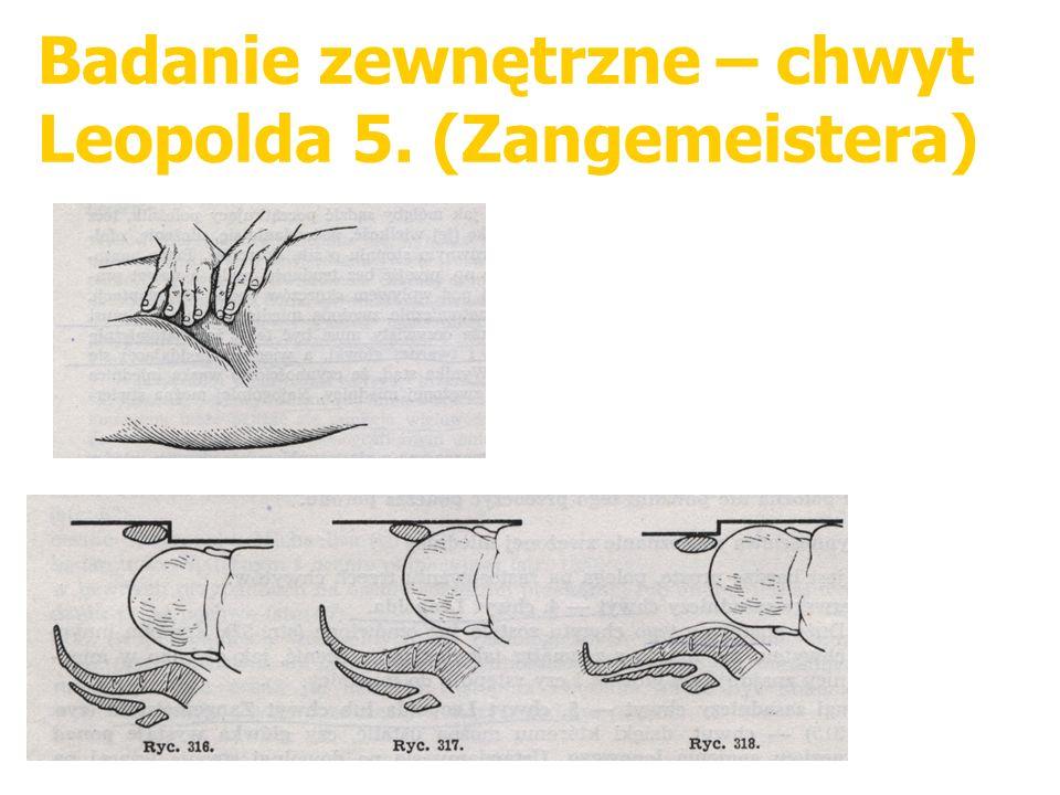 Badanie zewnętrzne – chwyt Leopolda 5. (Zangemeistera)