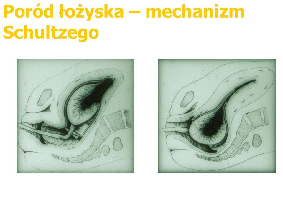 Poród łożyska – mechanizm Schultzego