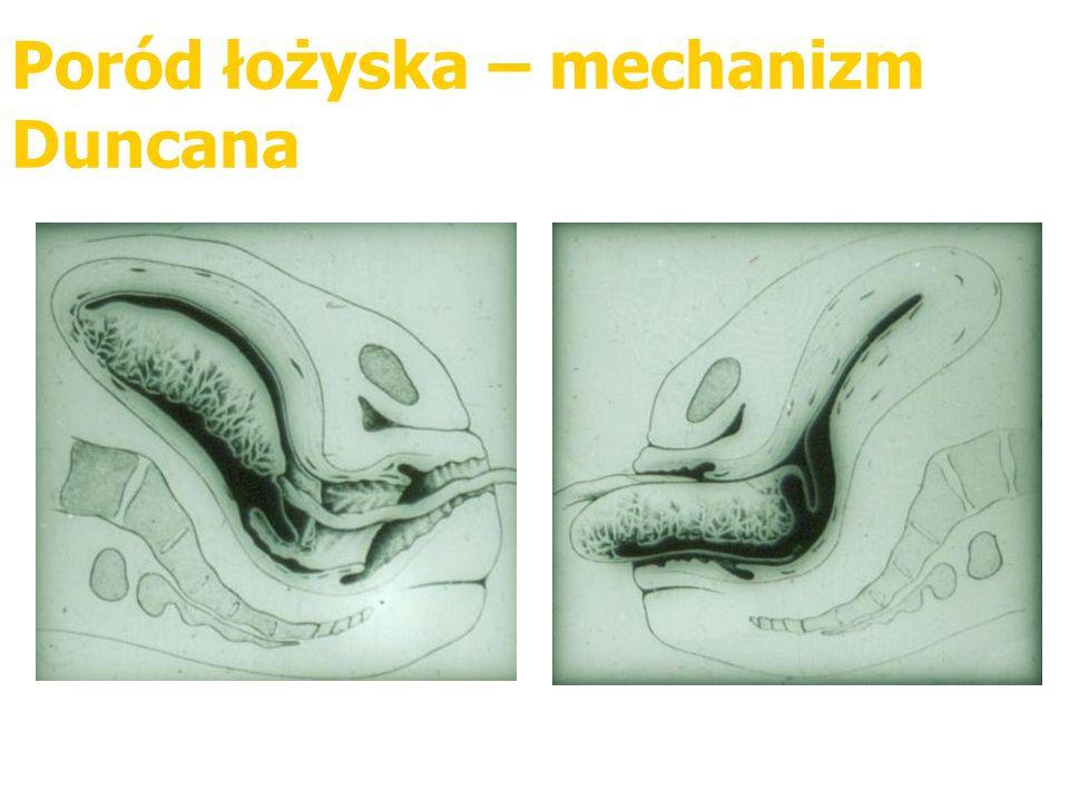 Poród łożyska – mechanizm Duncana
