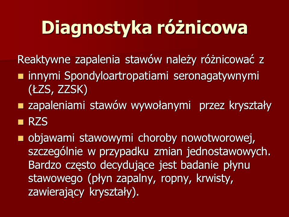 Diagnostyka różnicowa Reaktywne zapalenia stawów należy różnicować z innymi Spondyloartropatiami seronagatywnymi (ŁZS, ZZSK) innymi Spondyloartropatia
