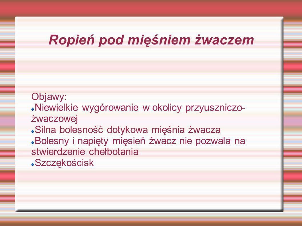 Ropień pod mięśniem żwaczem Objawy: Niewielkie wygórowanie w okolicy przyuszniczo- żwaczowej Silna bolesność dotykowa mięśnia żwacza Bolesny i napięty