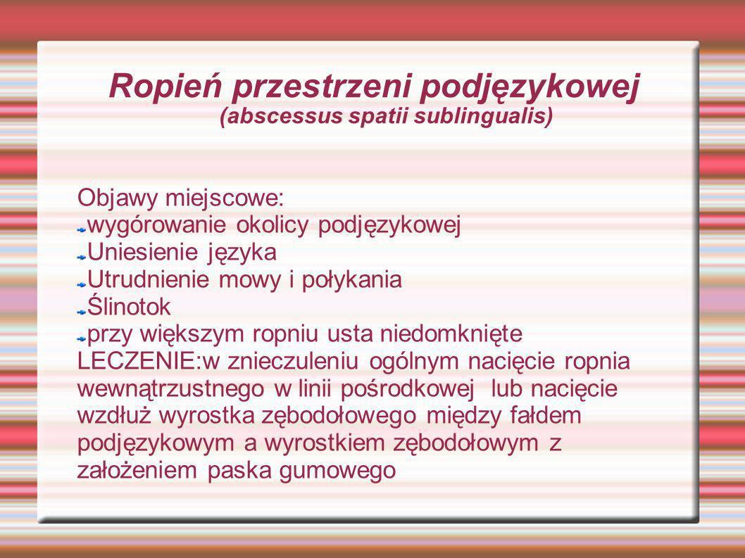 Ropień przestrzeni podjęzykowej (abscessus spatii sublingualis) Objawy miejscowe: wygórowanie okolicy podjęzykowej Uniesienie języka Utrudnienie mowy