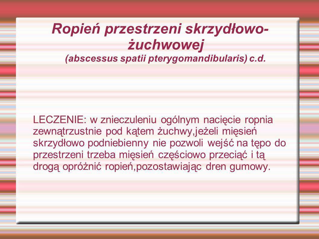 Ropień przestrzeni skrzydłowo- żuchwowej (abscessus spatii pterygomandibularis) c.d. LECZENIE: w znieczuleniu ogólnym nacięcie ropnia zewnątrzustnie p