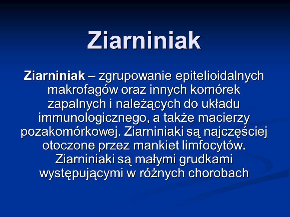 Ziarniniak Ziarniniak – zgrupowanie epitelioidalnych makrofagów oraz innych komórek zapalnych i należących do układu immunologicznego, a także macierz