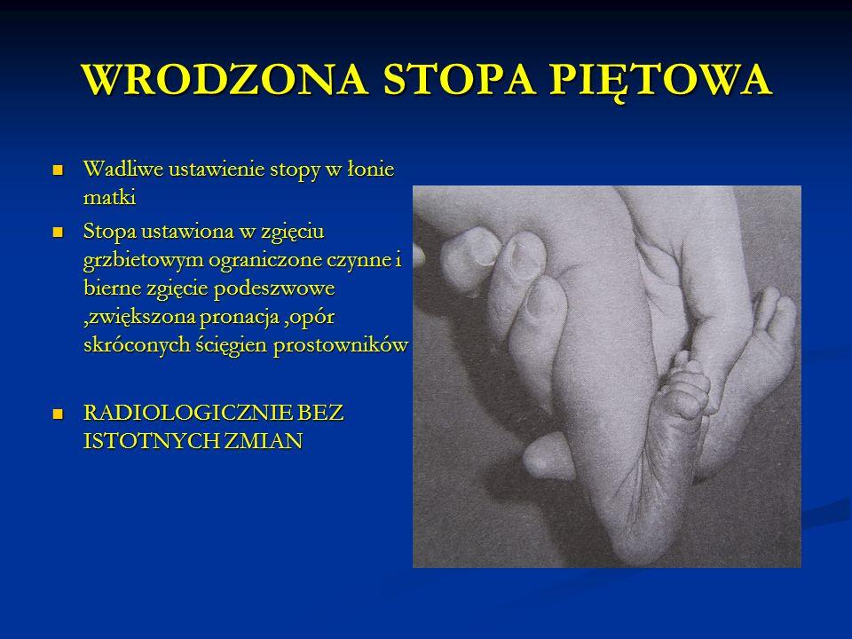 WRODZONA STOPA PIĘTOWA Wadliwe ustawienie stopy w łonie matki Wadliwe ustawienie stopy w łonie matki Stopa ustawiona w zgięciu grzbietowym ograniczone