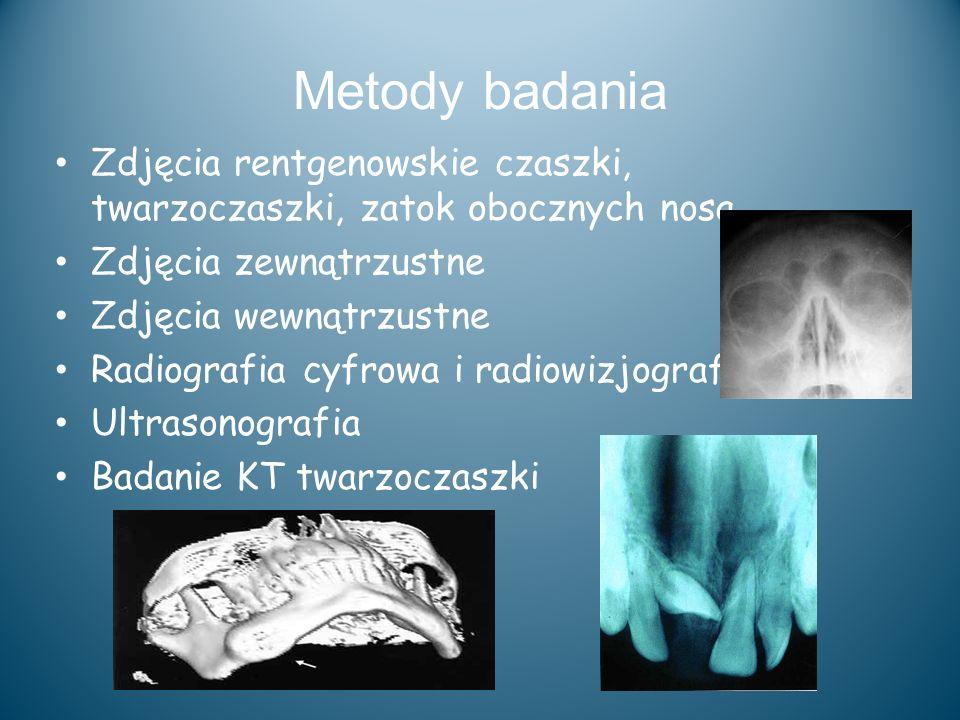 Metody badania Zdjęcia rentgenowskie czaszki, twarzoczaszki, zatok obocznych nosa Zdjęcia zewnątrzustne Zdjęcia wewnątrzustne Radiografia cyfrowa i ra