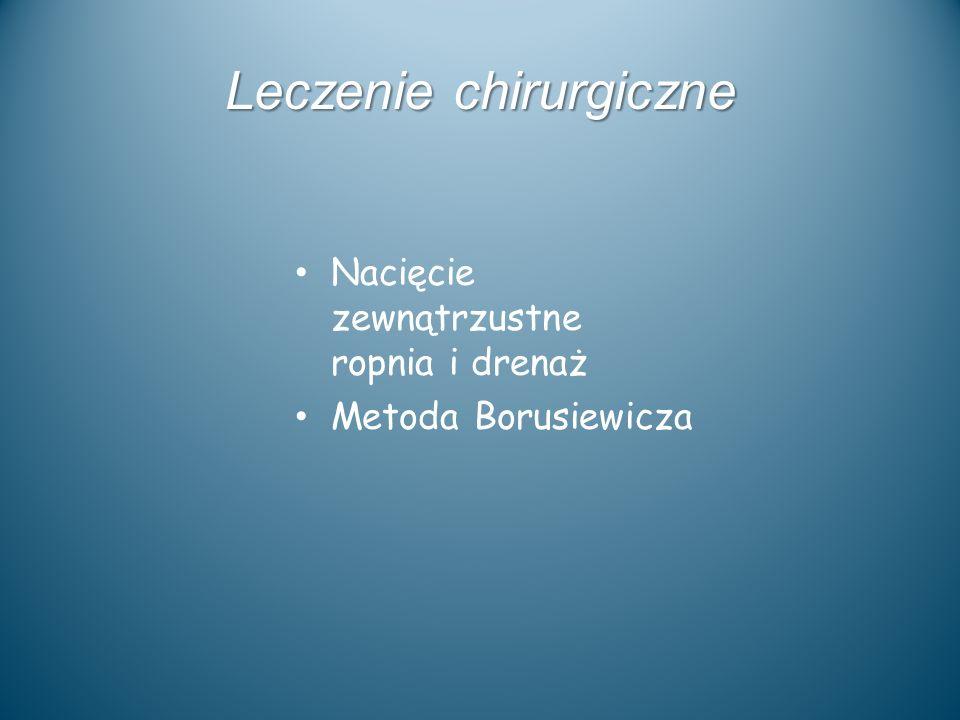 Leczenie chirurgiczne Nacięcie zewnątrzustne ropnia i drenaż Metoda Borusiewicza