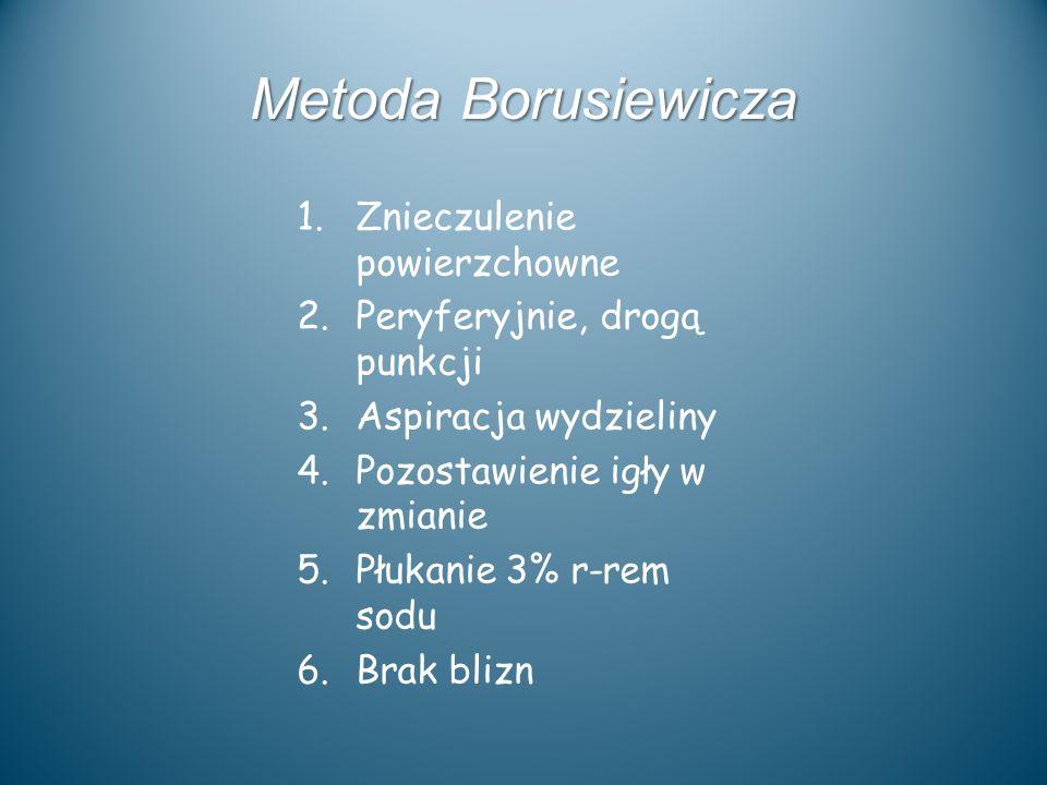Metoda Borusiewicza 1.Znieczulenie powierzchowne 2.Peryferyjnie, drogą punkcji 3.Aspiracja wydzieliny 4.Pozostawienie igły w zmianie 5.Płukanie 3% r-r