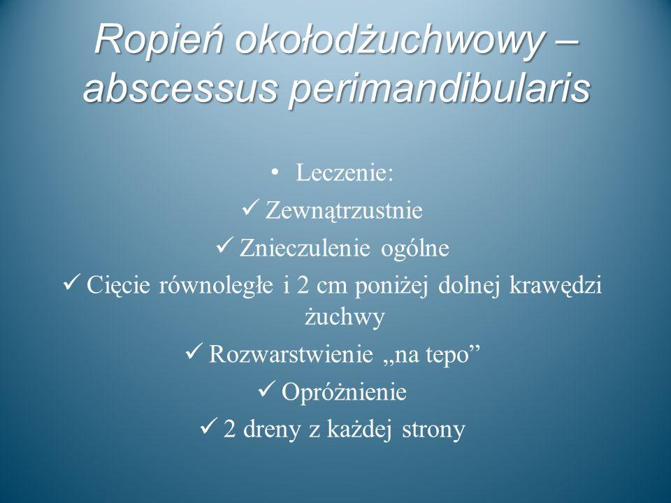 Ropień okołodżuchwowy – abscessus perimandibularis Leczenie: Zewnątrzustnie Znieczulenie ogólne Cięcie równoległe i 2 cm poniżej dolnej krawędzi żuchw
