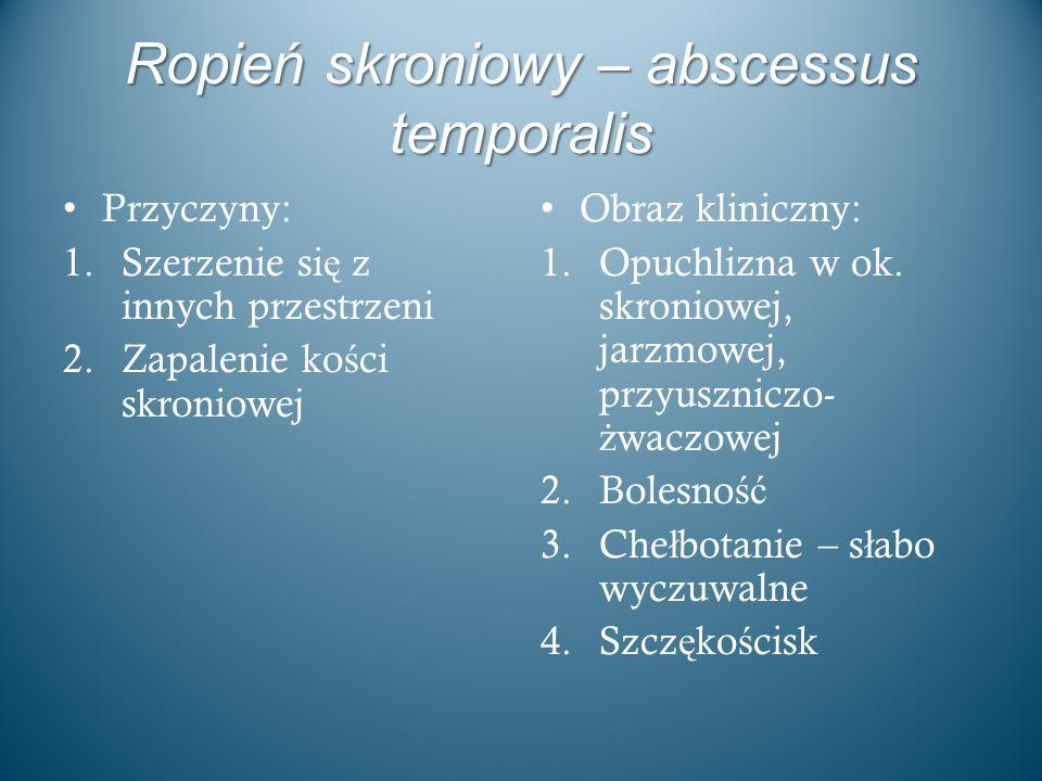 Ropień skroniowy – abscessus temporalis Przyczyny: 1.Szerzenie si ę z innych przestrzeni 2.Zapalenie ko ś ci skroniowej Obraz kliniczny: 1.Opuchlizna