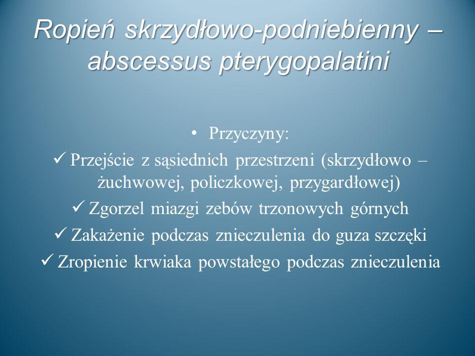 Ropień skrzydłowo-podniebienny – abscessus pterygopalatini Przyczyny: Przejście z sąsiednich przestrzeni (skrzydłowo – żuchwowej, policzkowej, przygar