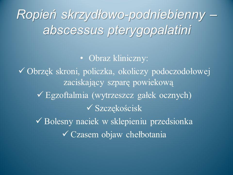Ropień skrzydłowo-podniebienny – abscessus pterygopalatini Obraz kliniczny: Obrzęk skroni, policzka, okoliczy podoczodołowej zaciskający szparę powiek