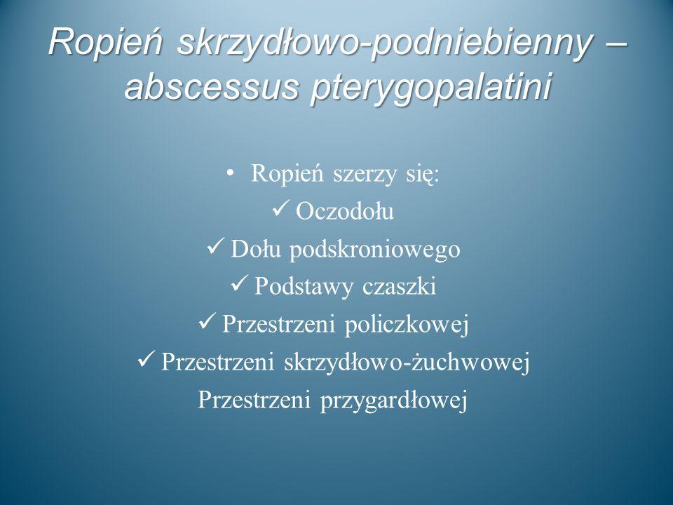 Ropień skrzydłowo-podniebienny – abscessus pterygopalatini Ropień szerzy się: Oczodołu Dołu podskroniowego Podstawy czaszki Przestrzeni policzkowej Pr