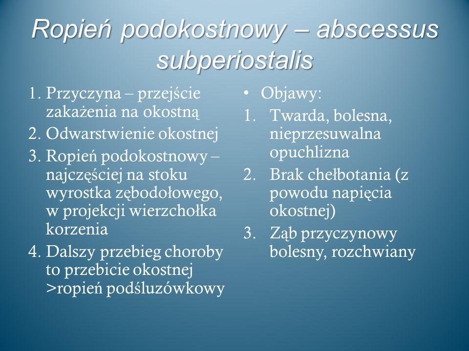 Ropień podokostnowy – abscessus subperiostalis 1. Przyczyna – przej ś cie zaka ż enia na okostn ą 2. Odwarstwienie okostnej 3. Ropie ń podokostnowy –