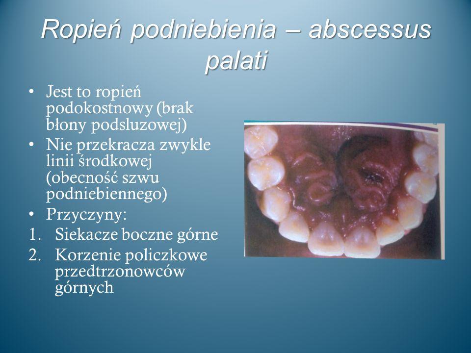 Ropień podniebienia – abscessus palati Jest to ropie ń podokostnowy (brak b ł ony podsluzowej) Nie przekracza zwykle linii ś rodkowej (obecno ść szwu
