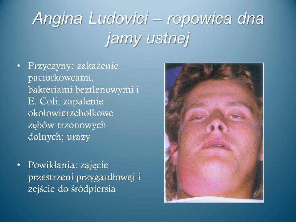 Angina Ludovici – ropowica dna jamy ustnej Przyczyny: zaka ż enie paciorkowcami, bakteriami beztlenowymi i E. Coli; zapalenie oko ł owierzcho ł kowe z