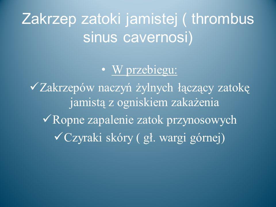 Zakrzep zatoki jamistej ( thrombus sinus cavernosi) W przebiegu: Zakrzepów naczyń żylnych łączący zatokę jamistą z ogniskiem zakażenia Ropne zapalenie