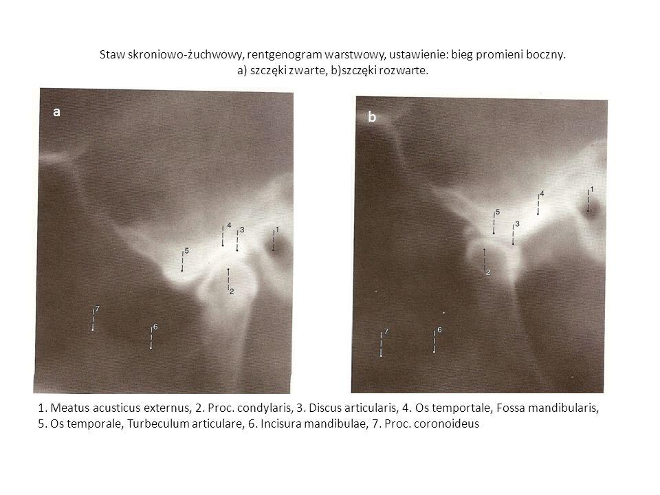 Staw skroniowo-żuchwowy, rentgenogram warstwowy, ustawienie: bieg promieni boczny. a) szczęki zwarte, b)szczęki rozwarte. a b 1. Meatus acusticus exte