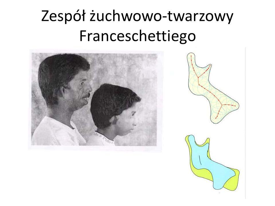 Zespół żuchwowo-twarzowy Franceschettiego