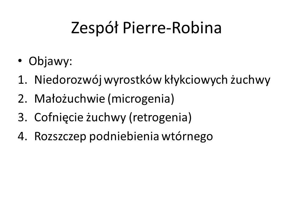 Zespół Pierre-Robina Objawy: 1.Niedorozwój wyrostków kłykciowych żuchwy 2.Małożuchwie (microgenia) 3.Cofnięcie żuchwy (retrogenia) 4.Rozszczep podnieb