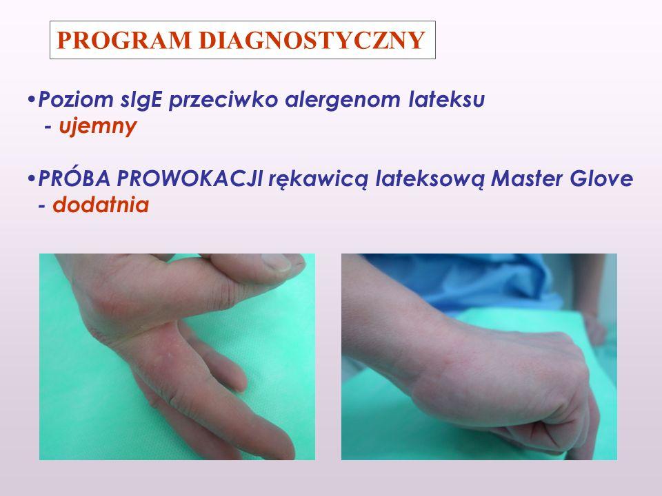 PROGRAM DIAGNOSTYCZNY Poziom sIgE przeciwko alergenom lateksu - ujemny PRÓBA PROWOKACJI rękawicą lateksową Master Glove - dodatnia