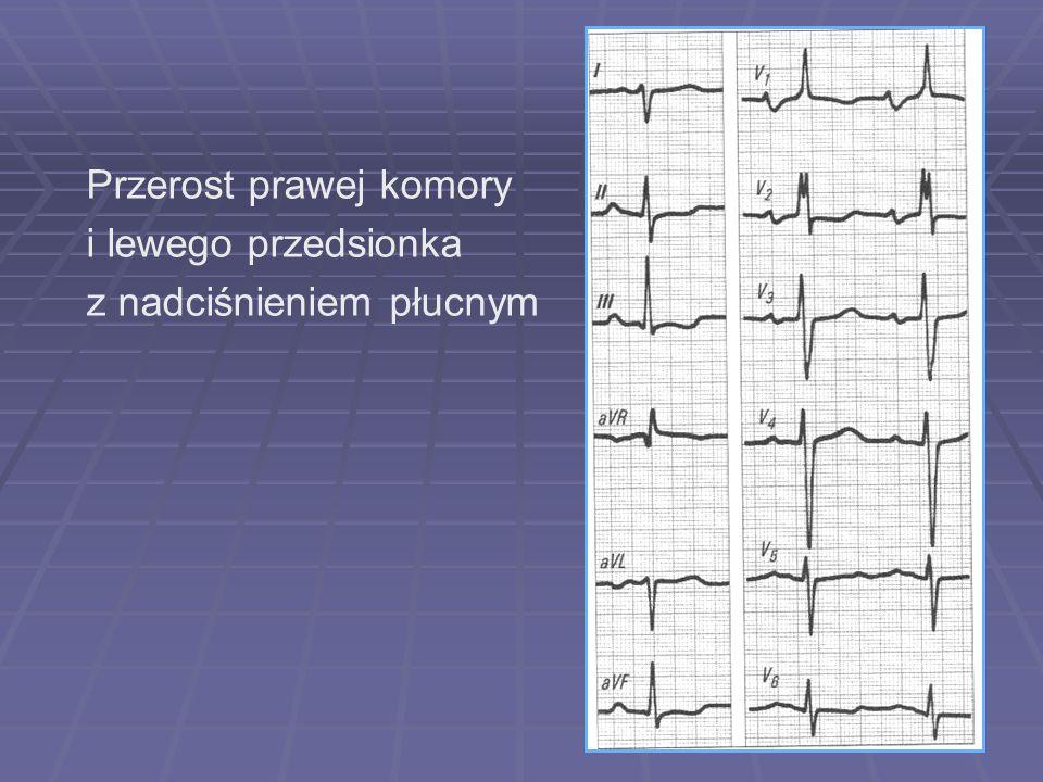 Przerost prawej komory i lewego przedsionka z nadciśnieniem płucnym