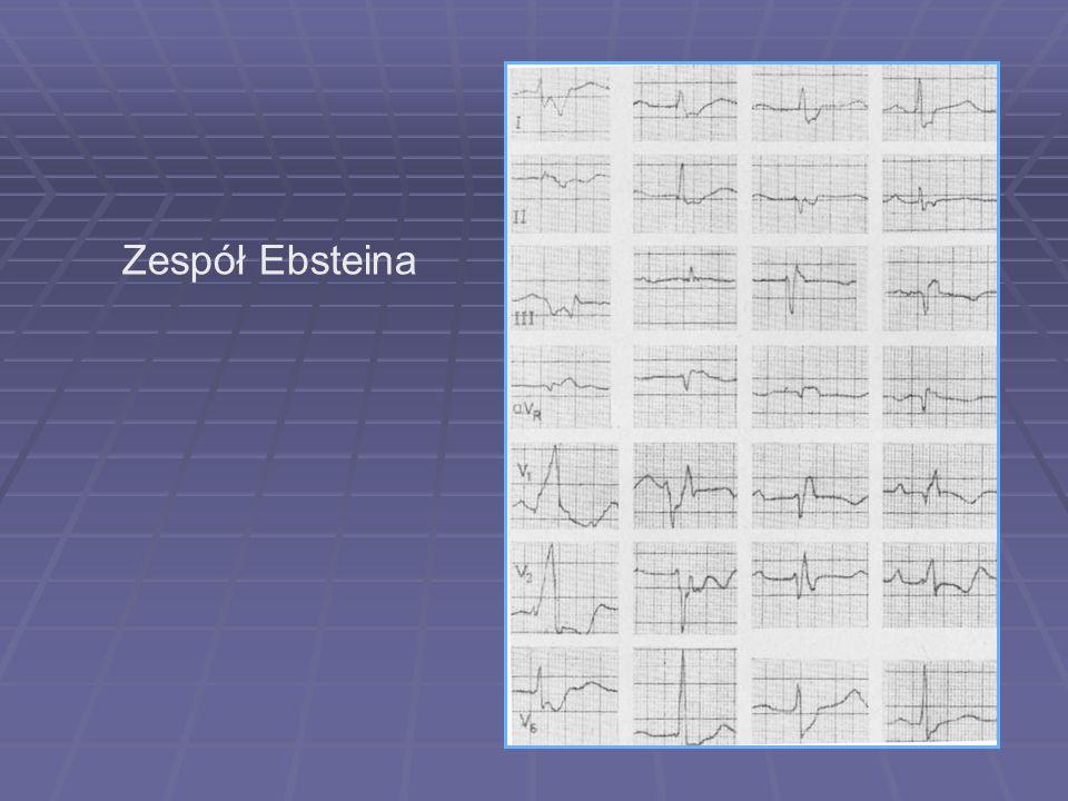 Zespół Ebsteina
