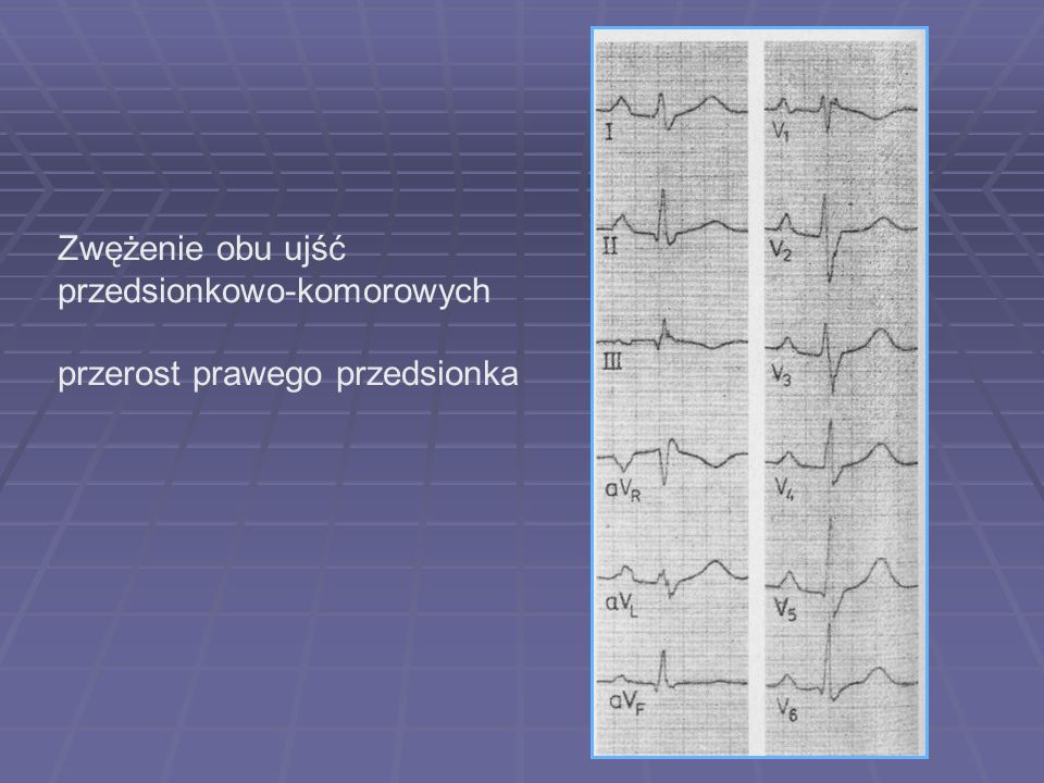Dextrogram patologiczny