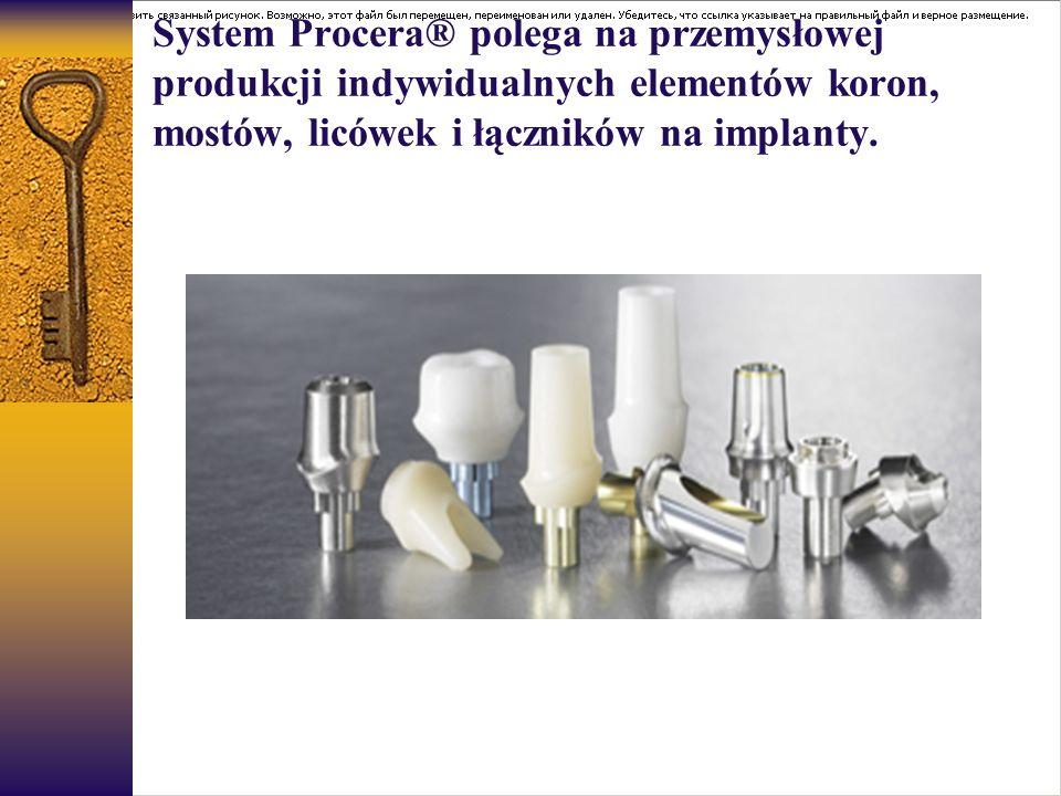 System Procera® polega na przemysłowej produkcji indywidualnych elementów koron, mostów, licówek i łączników na implanty.