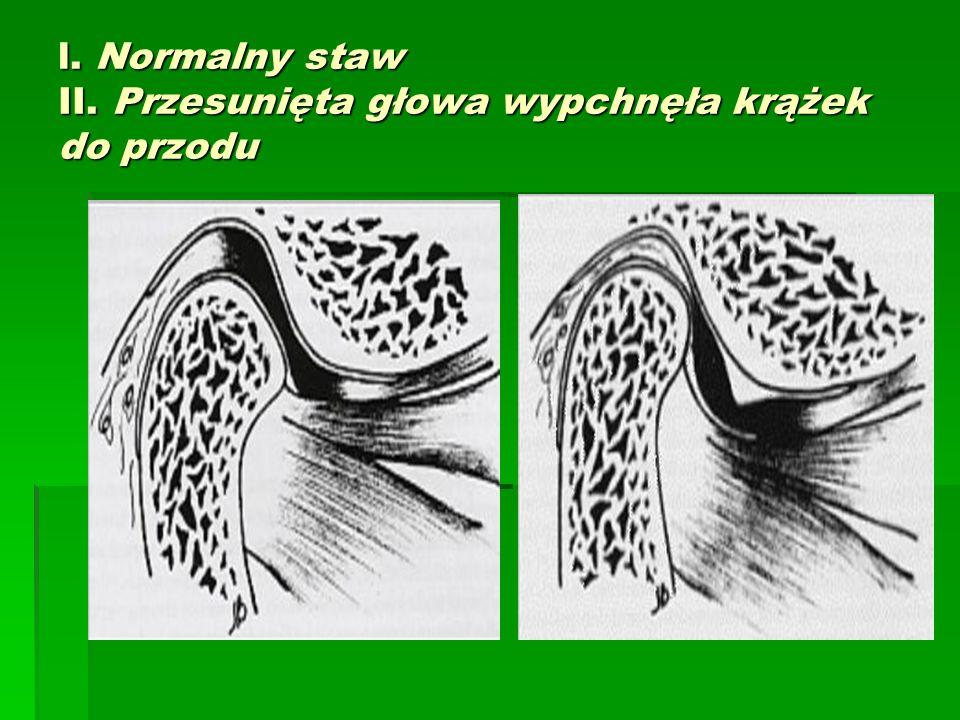 l. Normalny staw II. Przesunięta głowa wypchnęła krążek do przodu