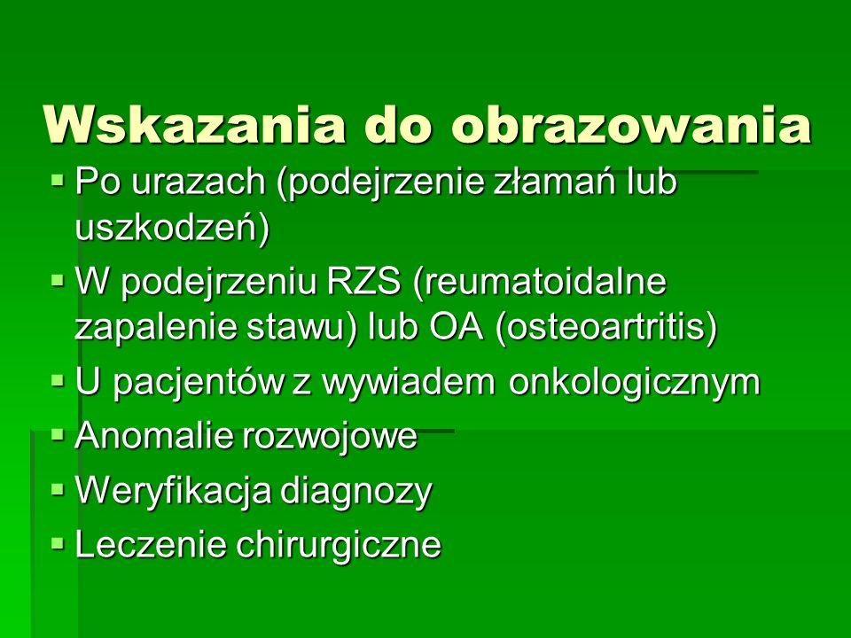 Wskazania do obrazowania Po urazach (podejrzenie złamań lub uszkodzeń) Po urazach (podejrzenie złamań lub uszkodzeń) W podejrzeniu RZS (reumatoidalne zapalenie stawu) lub OA (osteoartritis) W podejrzeniu RZS (reumatoidalne zapalenie stawu) lub OA (osteoartritis) U pacjentów z wywiadem onkologicznym U pacjentów z wywiadem onkologicznym Anomalie rozwojowe Anomalie rozwojowe Weryfikacja diagnozy Weryfikacja diagnozy Leczenie chirurgiczne Leczenie chirurgiczne