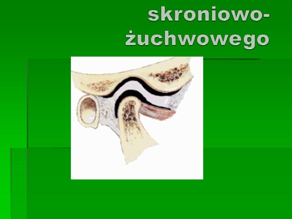 Zespół Costena Ucisk głowy stawowej na nerw uszno – skroniowy, strunę bębenkowa, przewód słuchowy zewnętrzny oraz okoliczne naczynia krwionośne Ucisk głowy stawowej na nerw uszno – skroniowy, strunę bębenkowa, przewód słuchowy zewnętrzny oraz okoliczne naczynia krwionośne Ból, szum w uszach, obniżenie słuchu, uczucie zatykania i pełności w przewodzie słuchowym zewn.