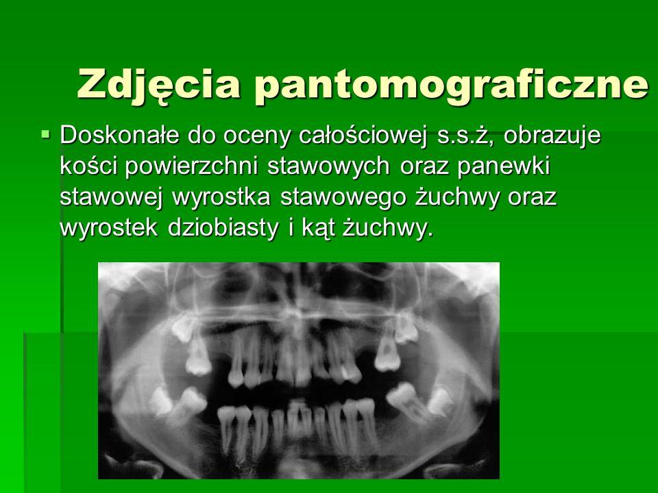 Zdjęcia pantomograficzne Doskonałe do oceny całościowej s.s.ż, obrazuje kości powierzchni stawowych oraz panewki stawowej wyrostka stawowego żuchwy oraz wyrostek dziobiasty i kąt żuchwy.