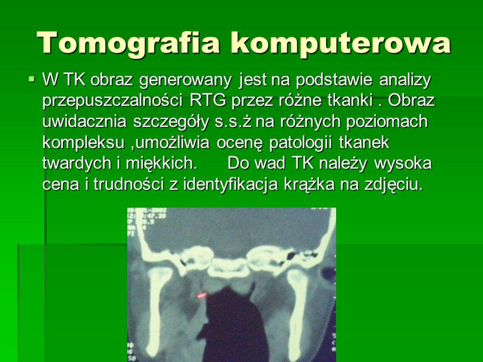 Tomografia komputerowa W TK obraz generowany jest na podstawie analizy przepuszczalności RTG przez różne tkanki. Obraz uwidacznia szczegóły s.s.ż na r
