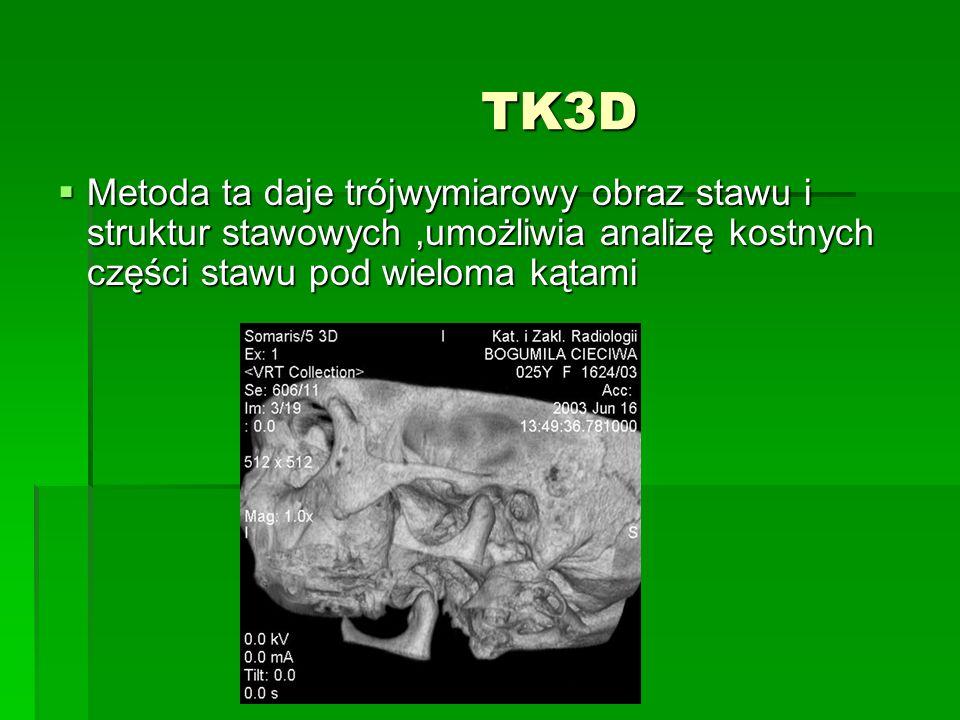 TK3D TK3D Metoda ta daje trójwymiarowy obraz stawu i struktur stawowych,umożliwia analizę kostnych części stawu pod wieloma kątami Metoda ta daje trójwymiarowy obraz stawu i struktur stawowych,umożliwia analizę kostnych części stawu pod wieloma kątami