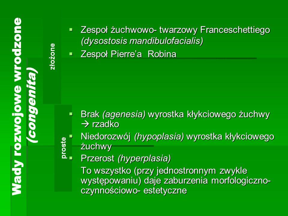 złożone proste Zespoł żuchwowo- twarzowy Franceschettiego (dysostosis mandibulofacialis) Zespoł żuchwowo- twarzowy Franceschettiego (dysostosis mandibulofacialis) Zespoł Pierrea Robina Zespoł Pierrea Robina Brak (agenesia) wyrostka kłykciowego żuchwy rzadko Brak (agenesia) wyrostka kłykciowego żuchwy rzadko Niedorozwój (hypoplasia) wyrostka kłykciowego żuchwy Niedorozwój (hypoplasia) wyrostka kłykciowego żuchwy Przerost (hyperplasia) Przerost (hyperplasia) To wszystko (przy jednostronnym zwykle występowaniu) daje zaburzenia morfologiczno- czynnościowo- estetyczne