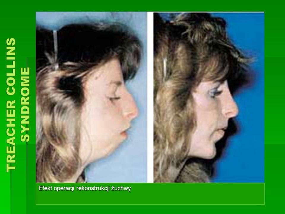 Efekt operacji rekonstrukcji żuchwy