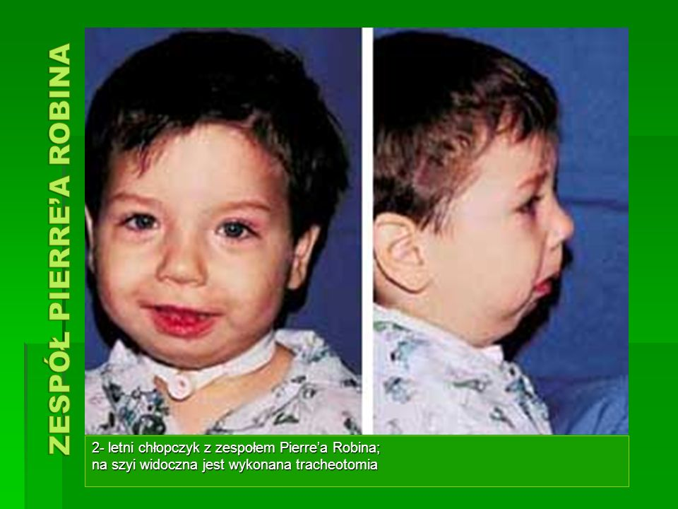 2- letni chłopczyk z zespołem Pierrea Robina; na szyi widoczna jest wykonana tracheotomia