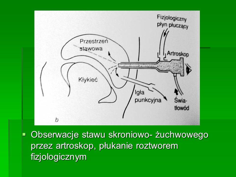 Obserwacje stawu skroniowo- żuchwowego przez artroskop, płukanie roztworem fizjologicznym Obserwacje stawu skroniowo- żuchwowego przez artroskop, płuk